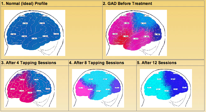 digitalized EEG brain scans