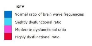key-to-brainwave-scan